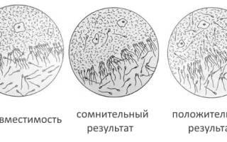 Посткоитальный тест где сделать в москве